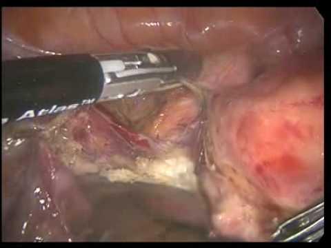Laparoscopic Hysterectomy Surgery - YouTube Laparoscopic Hysterectomy Procedure