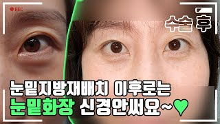 [4K] 중년여성 눈밑지방재배치 밀착 CAM! 수술후 …