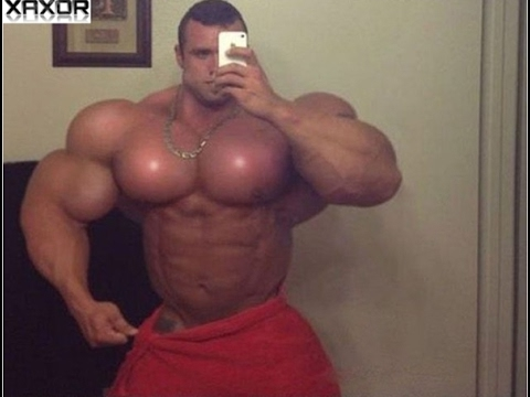 The Risks of Synthol Oil Injections