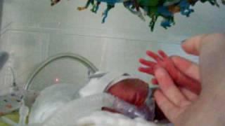 Rozthorne Crying micro preemie baby NICU 2lbs