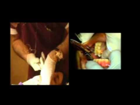 estrazione molare inferiore video