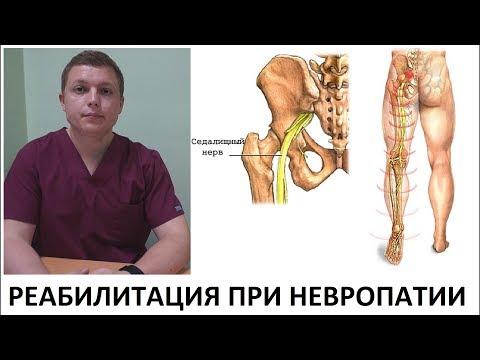 Седалищный нерв | Реабилитация при невропатии | Medical Rehabilitation Sciatic Neuropathy