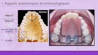 Bases anatomiques de la disjonction palatine