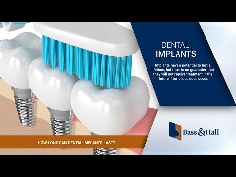 How Long Can Dental Implants Last? | Bass & Hall Dental Implant & Periodontal Partners