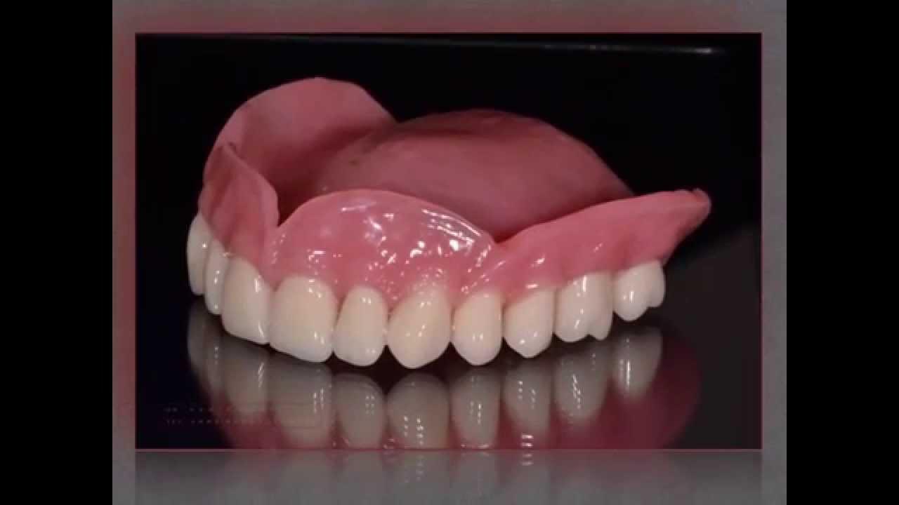 съемный пластиночный протез фото