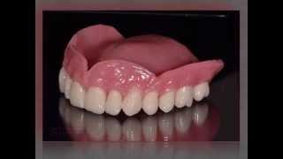 видео Полный и частичный съемный протез верхней челюсти