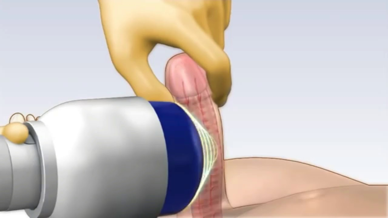 Xtreme gaping anal triple fisting