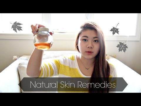 {Natural Skin Remedies} Allergies, Dry Itchy Skin