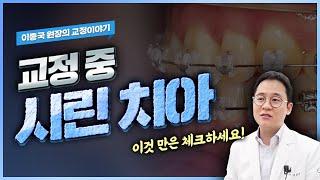 치아교정 중 치아가 시리다면? 교정 중 시린 이 에대해…