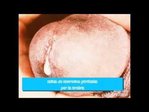 Gonorrea enfermedades transmision sexualidad