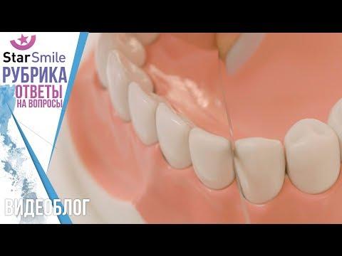 Сепарация зубов при исправлении прикуса. Блог №5