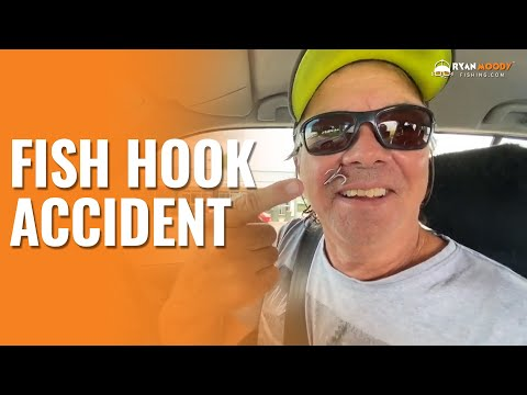 Fish Hook Accident After Being Startled By A Crocodile