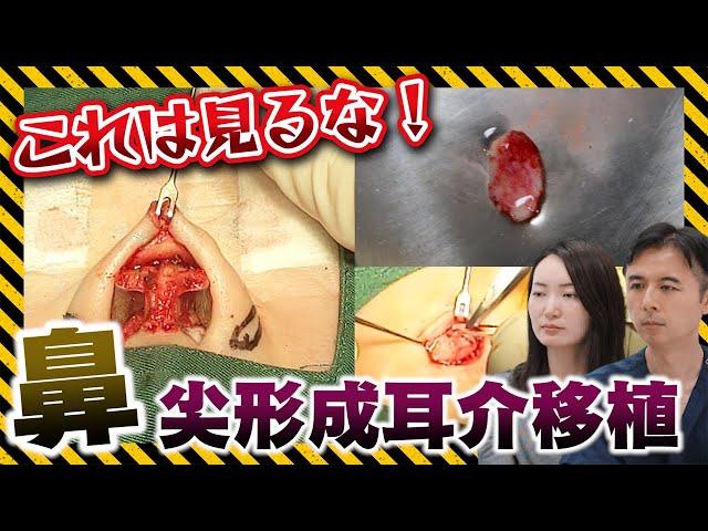 【手術動画を見ながら解説!】鼻に耳の軟骨を入れると女優のような鼻になるって本当!?