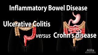 Understanding Inflammatory Bowel Disease (IBD).