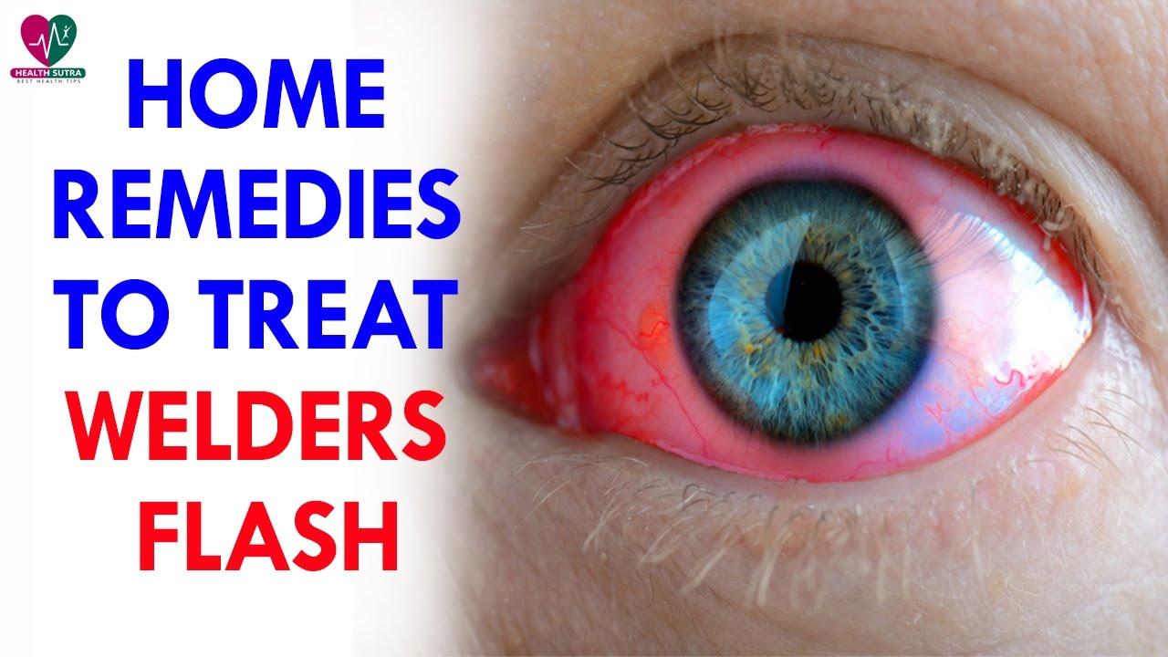 10 Effective Home Remedies To Treat Welder's Flash