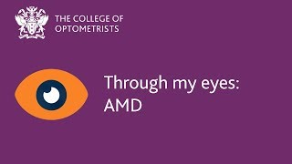 How might AMD affect my vision?