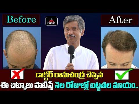 ఈ చిట్కాలు పాటిస్తే నెల రోజుల్లో బట్టతల మాయం...   Doctor Ramachandra Hair Growth Tips   Mirror TV