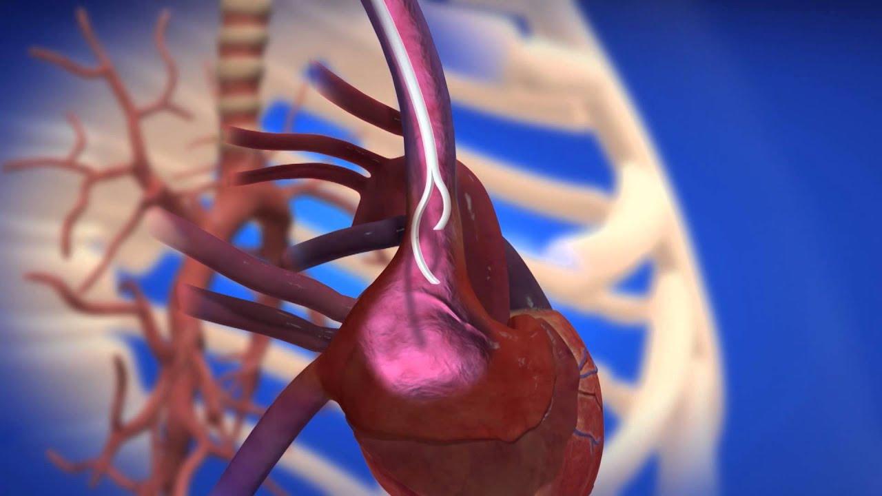 centrosflo174 longterm hemodialysis catheter youtube