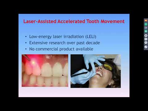 Dental Treatment: Accelerated Orthodontics