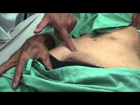 Các mốc giải phẫu vùng bẹn