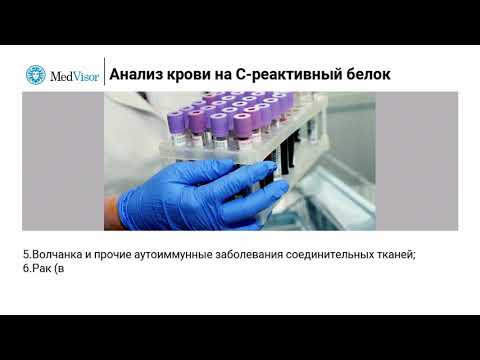 Анализ на C-реактивный белок (СРБ): результаты, расшифровка, норма