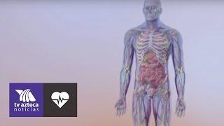 Kardiomiopati, Sebabkan Jantung Bekerja Keras Memompa Darah karena Otot Jantung Menebal dan Kaku.