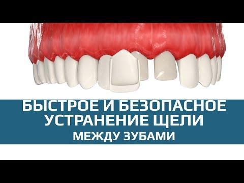 Изменение цвета зубов; Желтые и серые зубы что делать