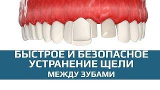 Виниры. Скрытие щели между зубами винирами(Современная стоматология имеет множество путей решения проблемы щели между зубами. Если ортодонтическое..., 2015-08-14T02:33:06.000Z)