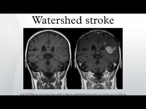 watershed infarct