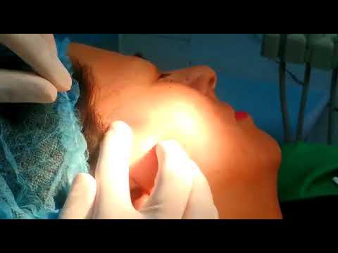 Dra. Pilar Parra / Tratamiento 3