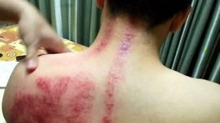 洪氏身足養生學苑(台南按摩)刮痧教學影片4