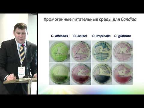 Б. А. РОДИОНОВ, Инвазивные микозы в гематологии-диагностика, профилактика, лечение.