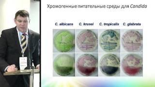 narodnie-sredstva-lecheniya-gribka-v-gorle