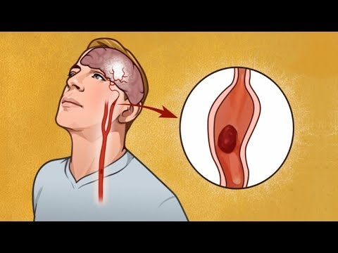 Don't Ignore These Warning Signs Before a Stroke — They Can Save a Life