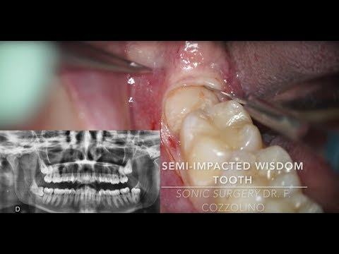 Horizontal semi-impacted wisdom tooth (sonic vs piezosurgery)