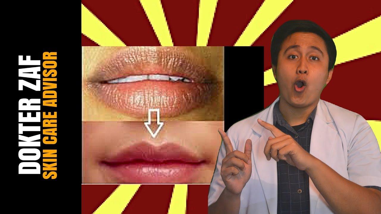 Cara Memerahkan Bibir Secara Alami Dengan 5 Bahan Ini Youtube