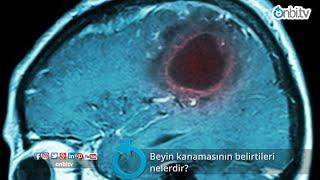 Beyin kanamasının belirtileri nelerdir?