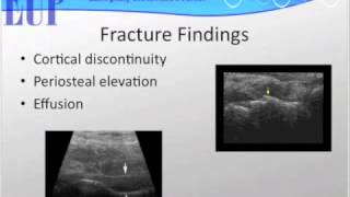 Ultrasound Podcast - SCANNING THE SCAPHOID