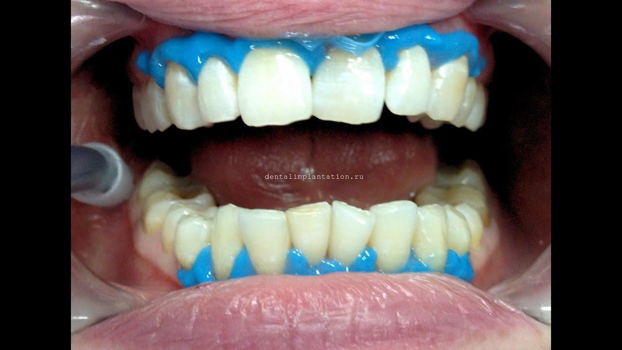отбеливание зубов white smile отзывы стоматологов
