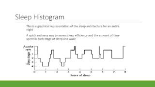 Sleep Architecture and Histogram 16