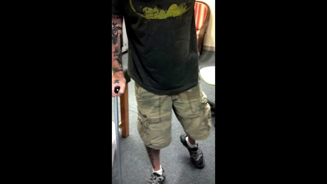 Patient With Left Leg Weakness From Nerve Damage Youtube