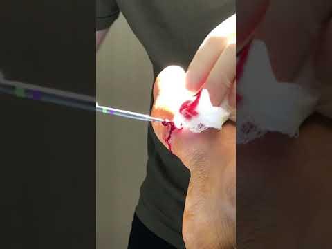 operacion de juanetes con tornillos