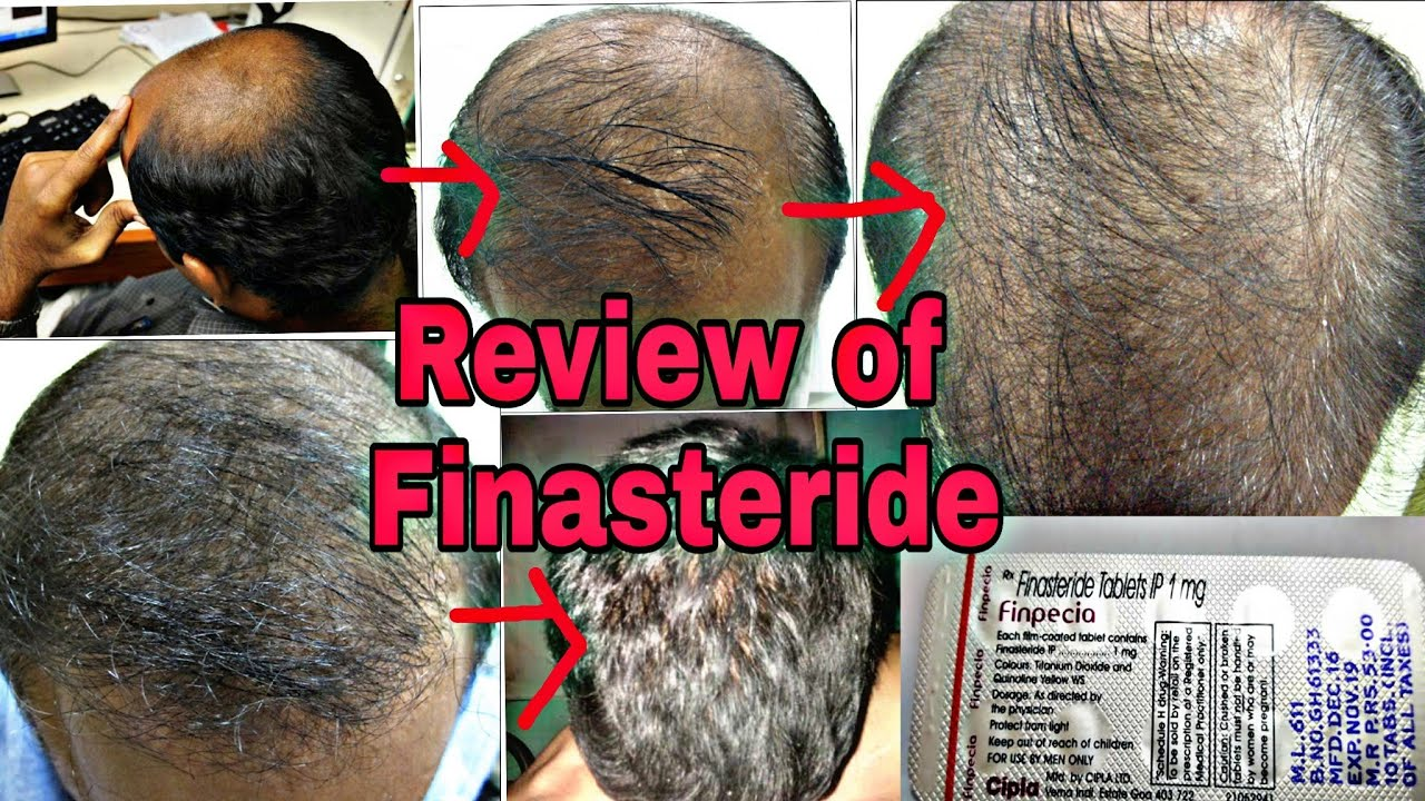 Minoxidil5 Morr F 5 Best Hair Regrowther By Life Lovers