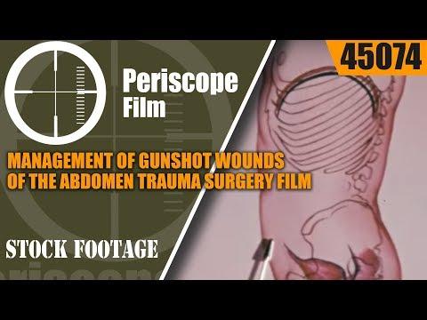 MANAGEMENT OF GUNSHOT WOUNDS OF THE ABDOMENTRAUMA SURGERY FILM 45074