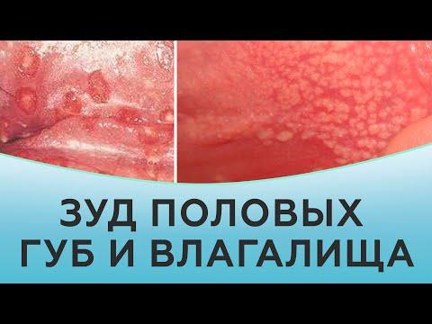 Чешутся и болят малые половые губы