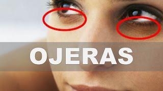 ☞ Remedios caseros para las ojeras – Como eliminar los círculos oscuros bajo los ojos thumbnail