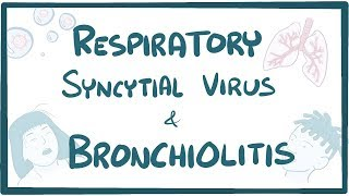 What is bronchiolitis? bronchiolitis inflammation of the small airways, often due to respiratory syncytial virus. it most dangerous for babies and smal...