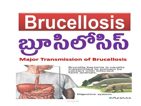 Brucellosis - బ్రూసిలోసిస్ Causes, Symptoms, Treatment prevention tips Cr. G.Jesu Prasad Babu