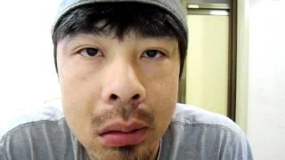 気功による顔面麻痺の治療5日目 ベル麻痺 検索動画 17