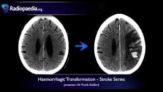 Stroke: Haemorrhagic transformation - radiology video tutorial (CT, MRI)